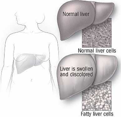 What to do about nonalcoholic fatty liver disease featured image