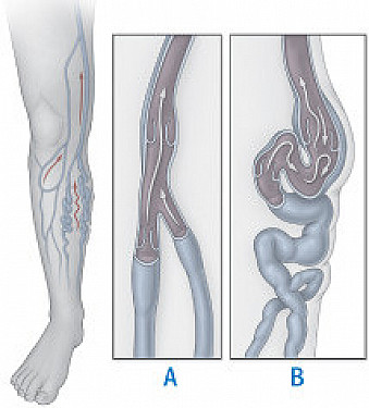Ask the doctor: Can getting rid of varicose veins cause venous insufficiency? featured image