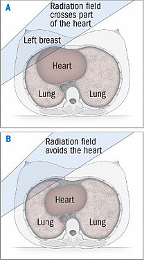 Radiation for breast cancer is linked to narrowing of the coronary arteries featured image
