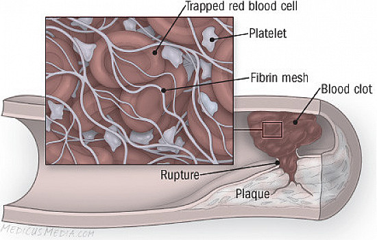Blood clots: The good, the bad, and the deadly featured image