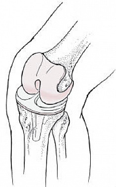 New knee helps your heart featured image