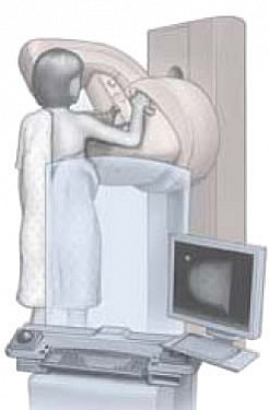 Do you need mammograms? featured image