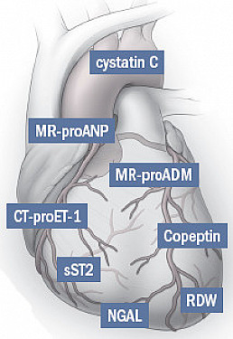 Heart treatment designed just for you featured image