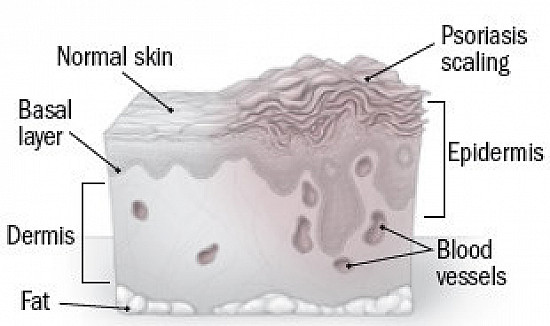 Psoriasis and vitamin D deficiency featured image