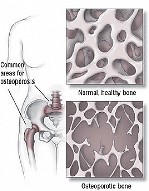 Update on osteoporosis treatment featured image