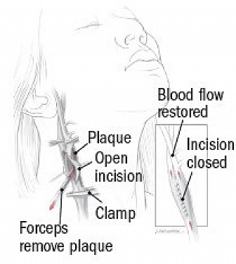 Carotid stenosis treatments compared featured image