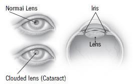 Normal vs. Cataract Lens