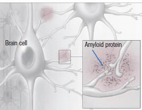Alzheimer's drug update featured image