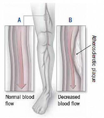 Prevent peripheral artery disease featured image