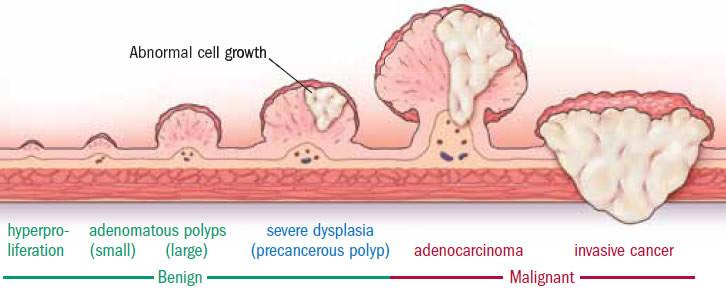 How a colon polyp progresses to cancer