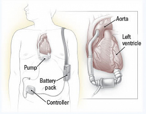 What's new with the LVAD? featured image