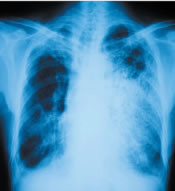 Heart attack risk rises after a bout of pneumonia  featured image
