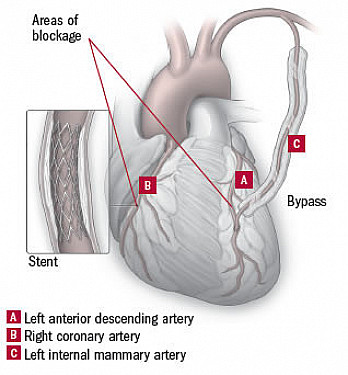 Bypass plus angioplasty: The best of both worlds?  featured image
