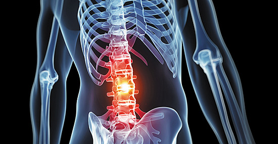 Low back pain attacks: One pill may be enough featured image