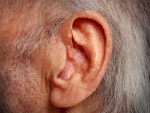 How to work around a minor hearing loss featured image