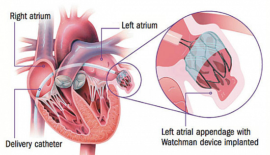 Atrial fibrillation: The latest treatment trends  featured image