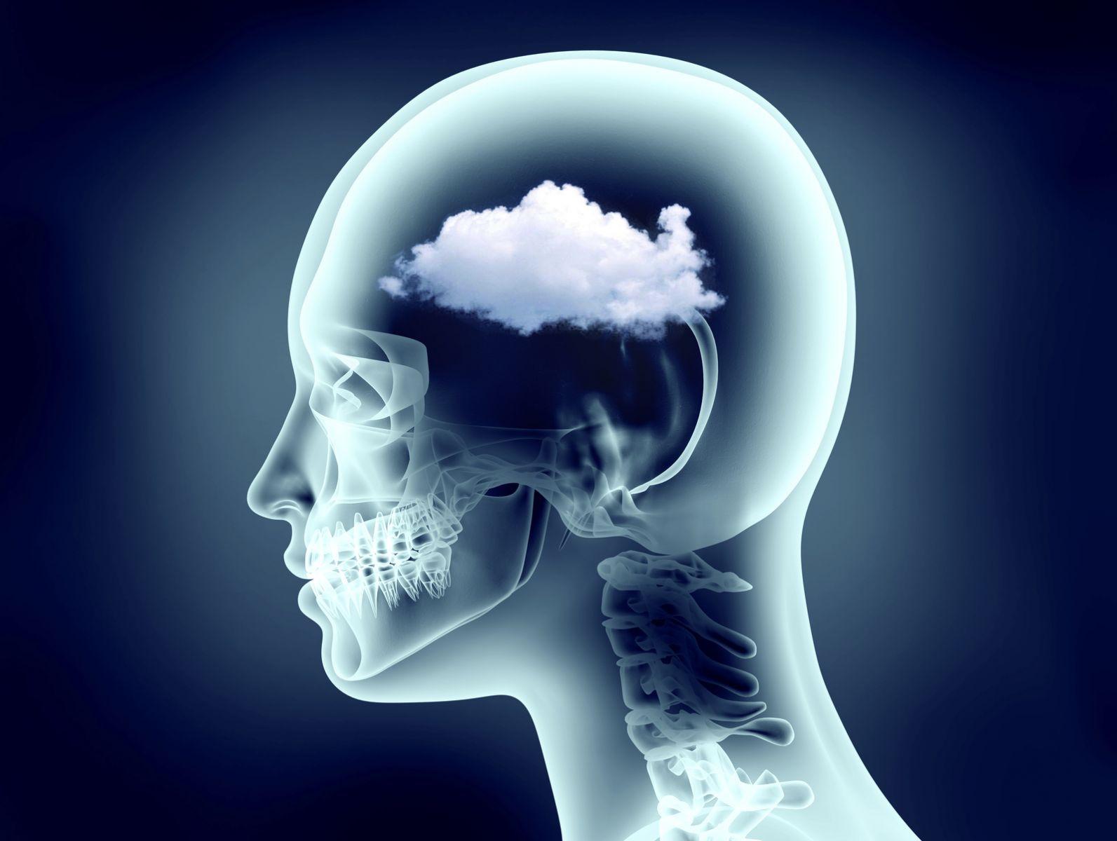 brain fog fuzzy thinking