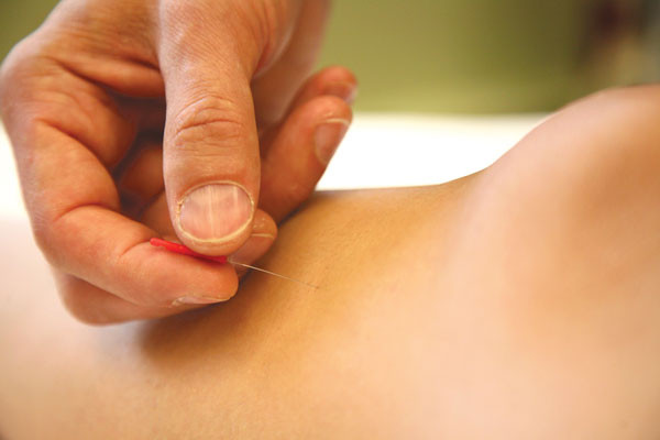 acupuncture for constipation