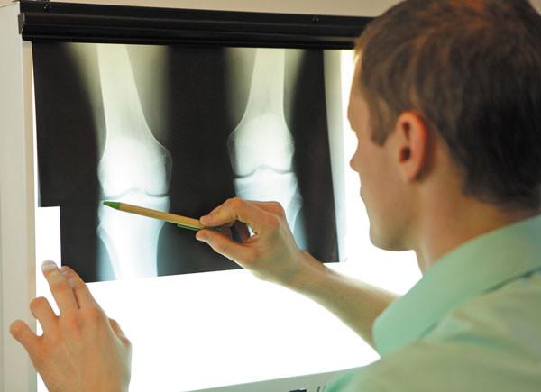 screening tool for diagnosing knee pain