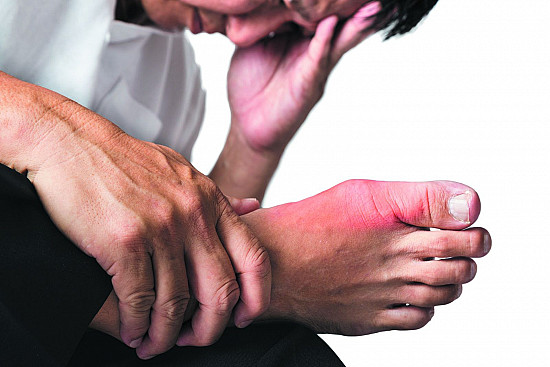 Are you at risk for gout? featured image
