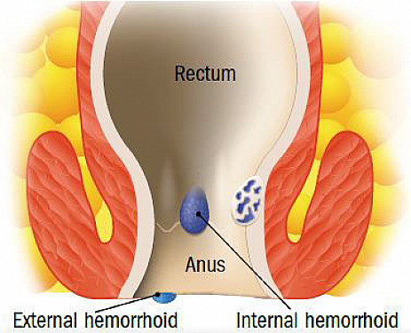 Help for hemorrhoids featured image