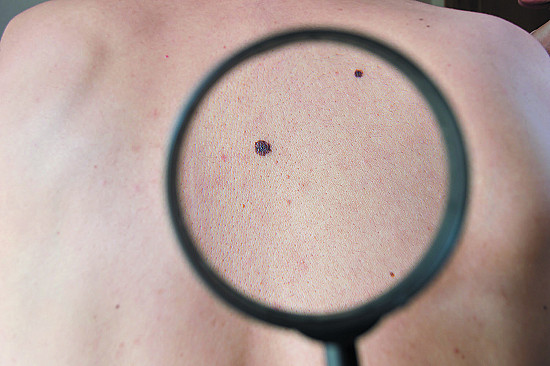 Melanomas don't always arise from existing moles featured image
