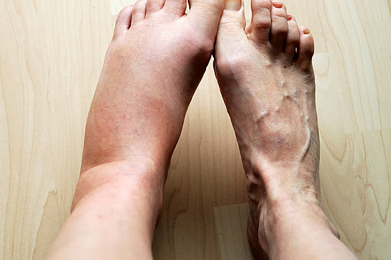 Concerns about swollen legs featured image