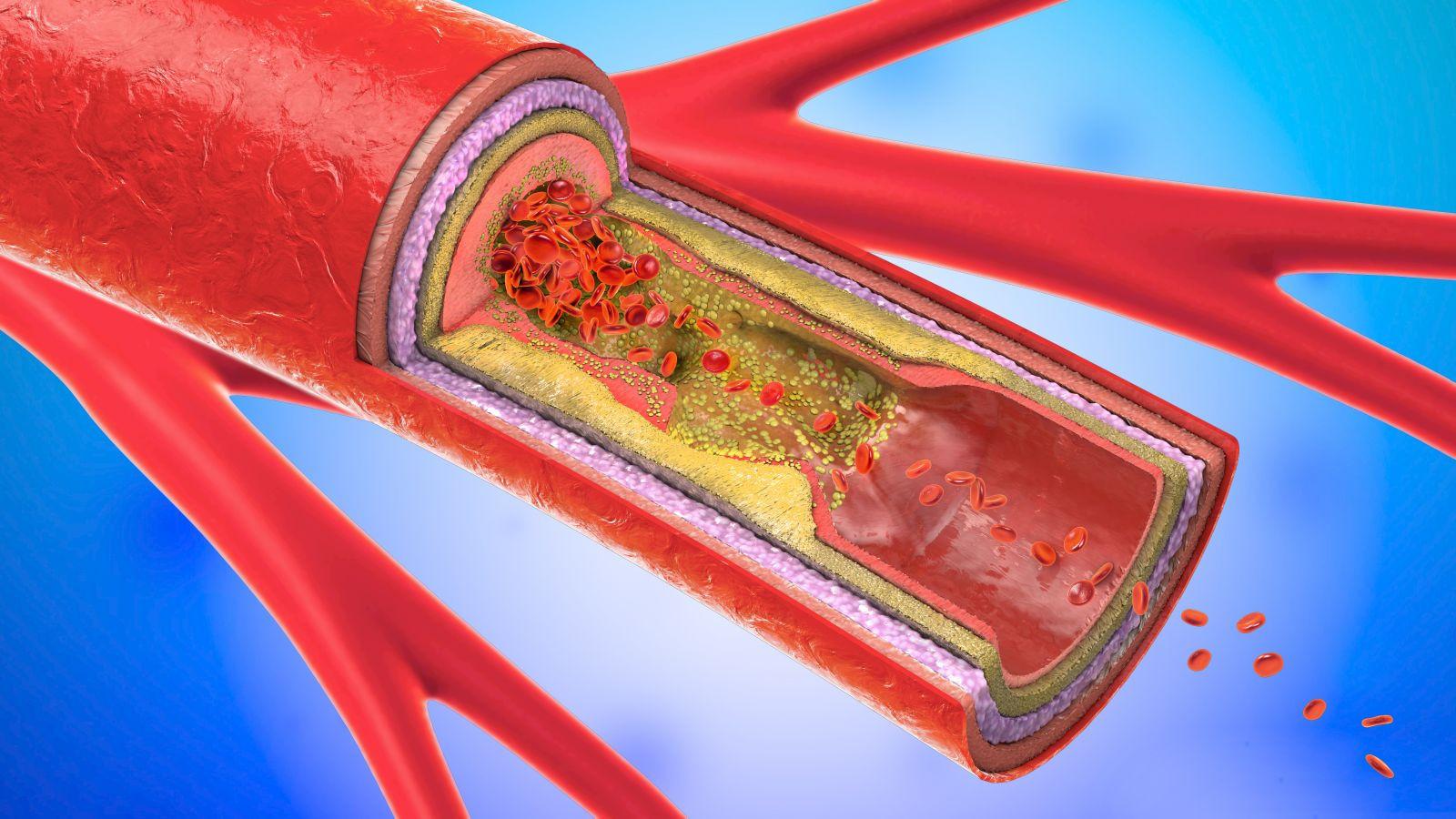 carotid artery