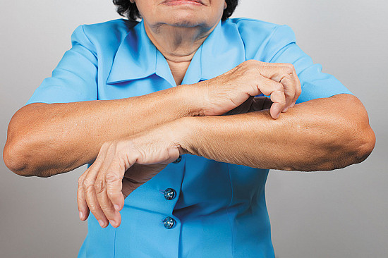 Eczema may signal higher risk of cardiovascular problems featured image
