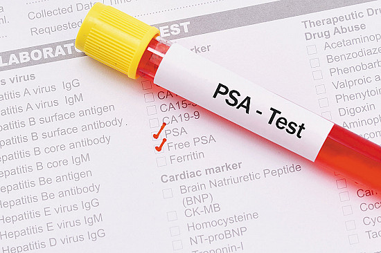 Prostate screening guideline highlights patient choice featured image