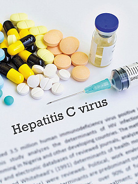 Do I need to be screened for hepatitis C? featured image