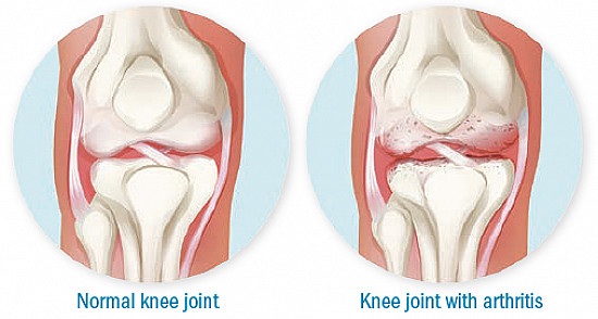 Moving away from knee osteoarthritis featured image
