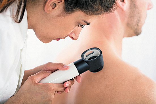 Do all skin cancers have to be removed? featured image