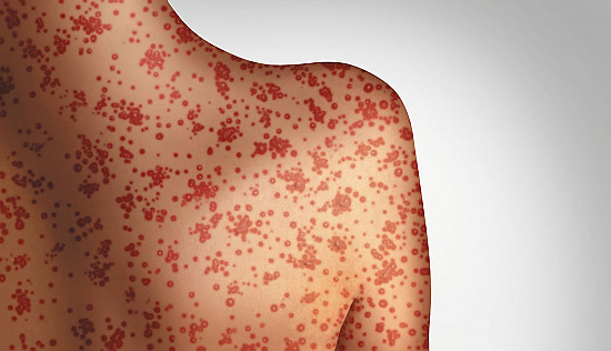 What do the measles outbreaks mean for me? featured image