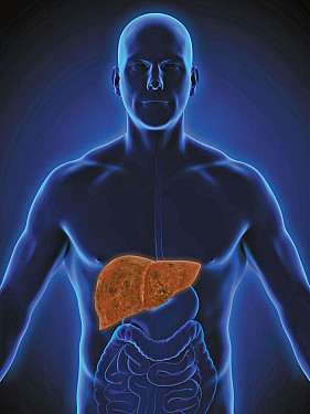 Fatty liver disease: An often-silent condition linked to heart disease featured image