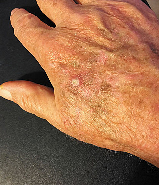 Stay ahead of skin cancer featured image
