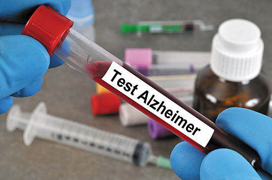 Blood test may find early signs of Alzheimer's featured image