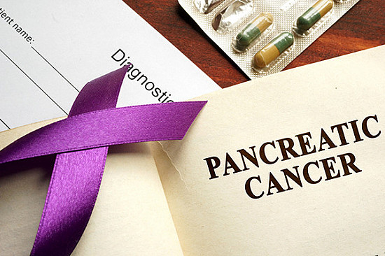 Government advisory board recommends against screening for pancreatic cancer featured image