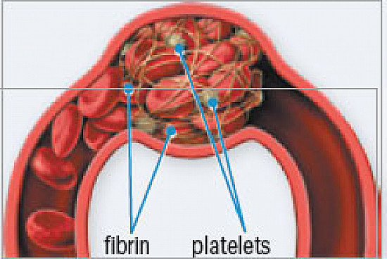 Understanding blood thinners featured image