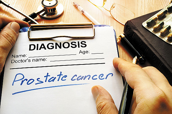 The option of prostate cancer surgery featured image