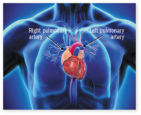 What is pulmonary hypertension? featured image