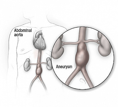 Checking for an abdominal aortic aneurysm: Who, when, and why? featured image