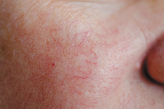 Rosacea can flare at menopause featured image