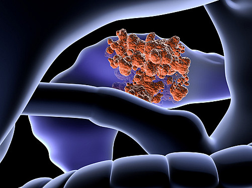 New risk model could better identify people at high risk for pancreatic cancer featured image