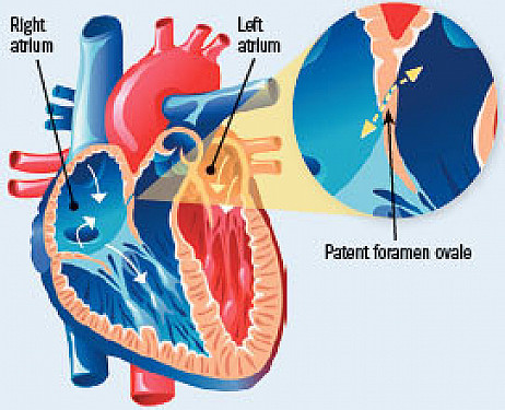 New advice about a common heart variation: Patent foramen ovale (PFO) featured image
