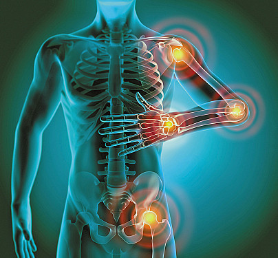 What is chronic inflammation? featured image
