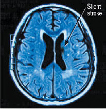 What is a silent stroke? featured image