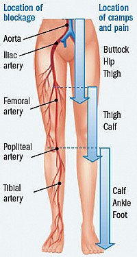 When walking leads to leg pain featured image