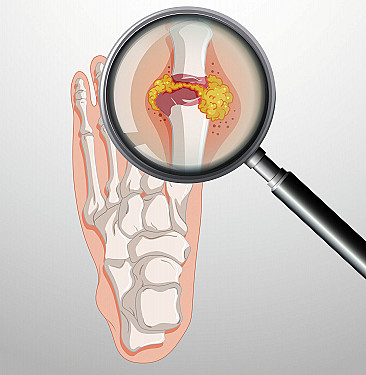 The new-old way to treat gout featured image