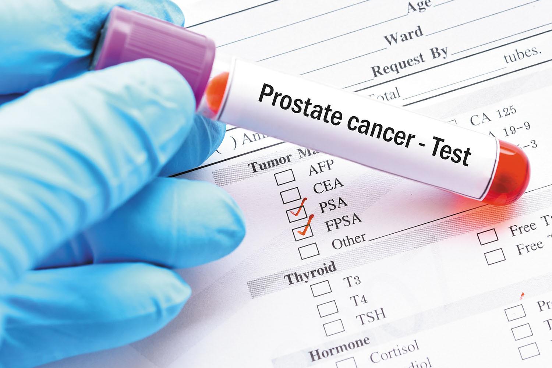prostate cancer blood test psa